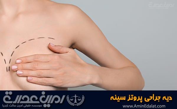 دیه جراحی پروتز سینه