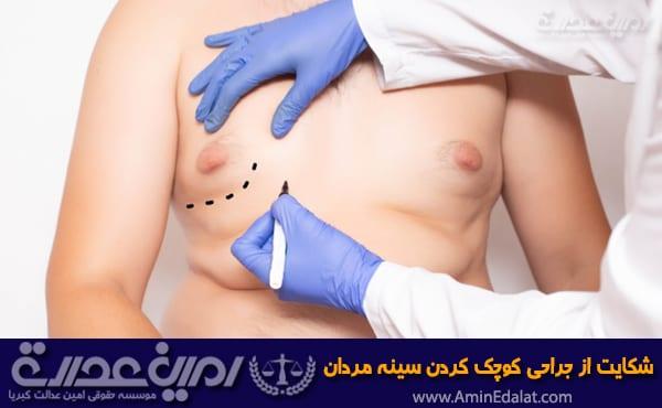 شکایت از جراحی سینه مردان (ژنیکوماستی)